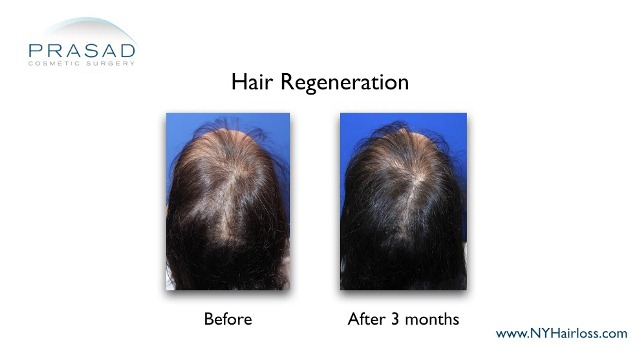 female hair loss 3 months after hair regeneration