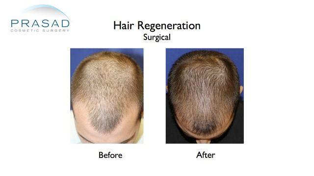 Hair Regeneration Hair Transplant Improvement