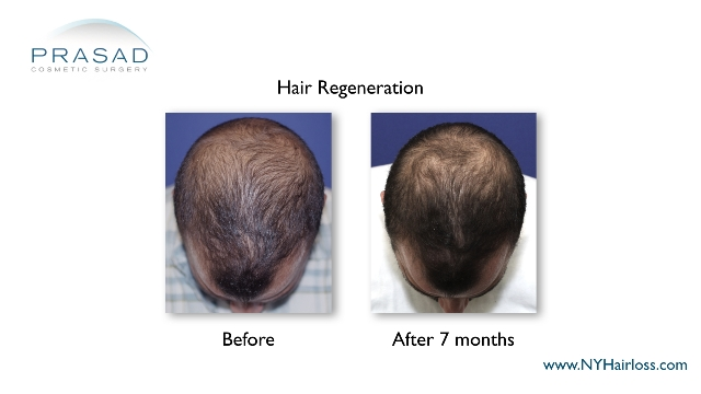 Hair Regeneration before and after 7 months performed by Dr Amiya Prasad