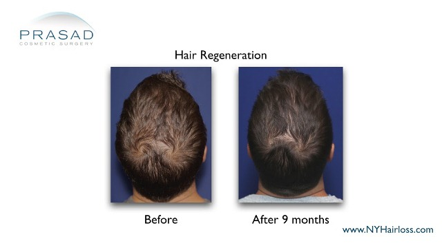 hair regeneration before and after 9 months Dr Amiya Prasad