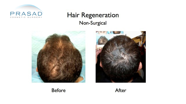 male hairloss before and after hair regeneration