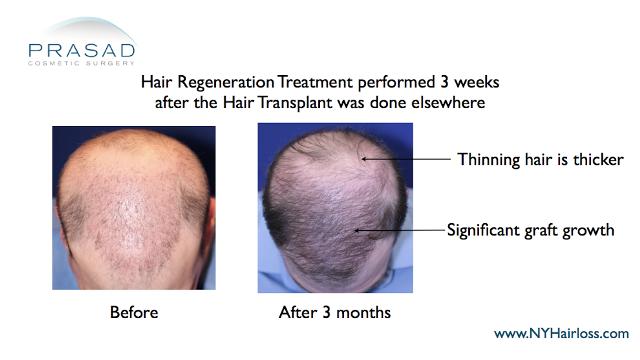 improvement of hair transplant with hair regeneration