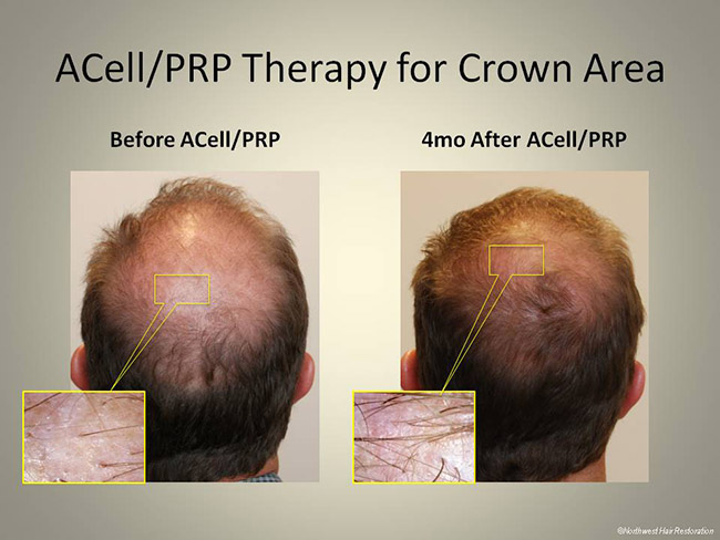Acell - PRP Therapy for Crown Area