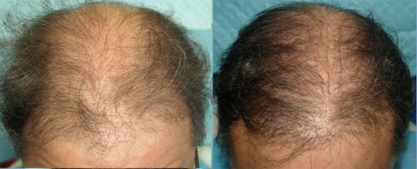 Acell PRP in hair transplant