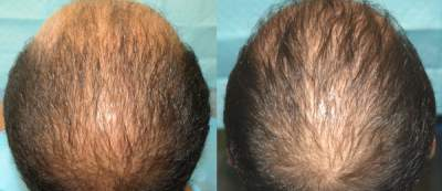 Acell + PRP Injections B&A