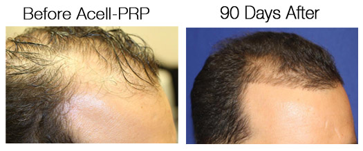 Results 90 Days After Acell-PRP