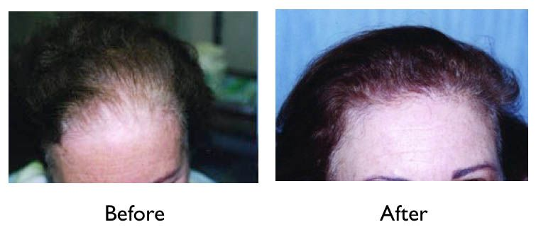 female with genetic hair loss - hair transplant before and after