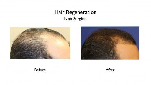 Hair Regeneration before and afters.019