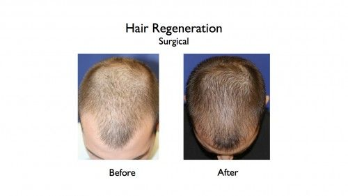 Hair Regeneration before and afters.044