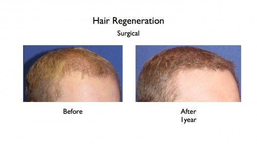 Hair Regeneration before and afters.046