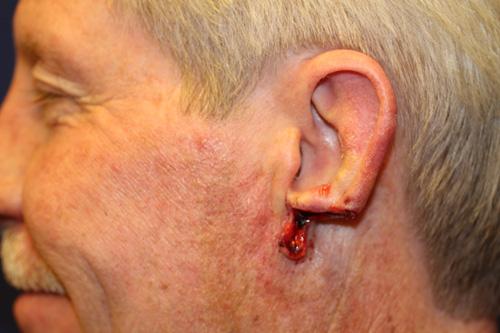 Acell Extracellular Matrix (ECM) Used in Ear Regeneration/Reconstruction