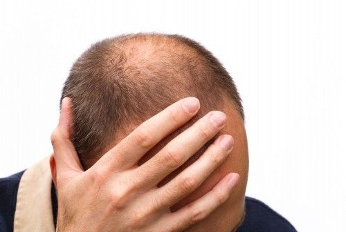 Man with thinning hair with hand on head