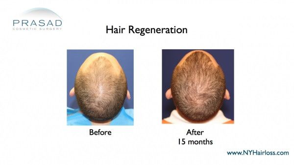 hair regeneration after 15 months