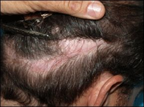 Scarring in Hair Transplant Area from Other Hair Transplant Center Before Hair Regeneration Treatment