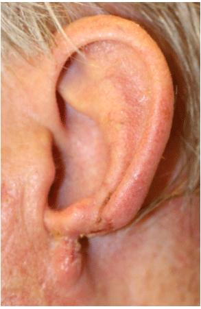 Reconstructive Surgery with Advanced Healing Using ECM
