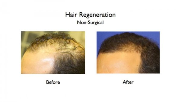 hair loss-acell prp