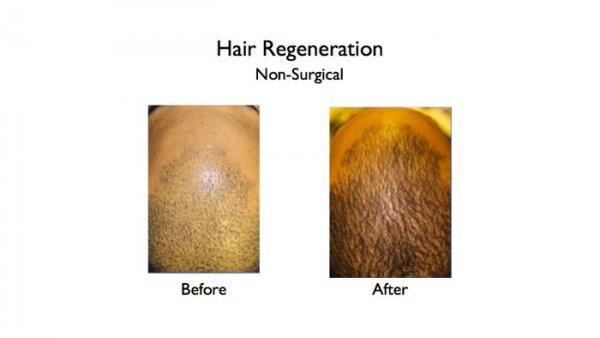 hair regeneration - non-surgical