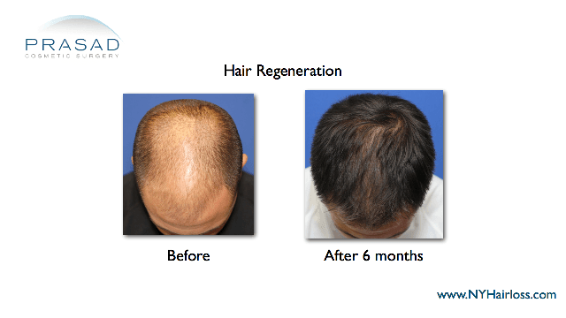 hair transplant alternative treatment
