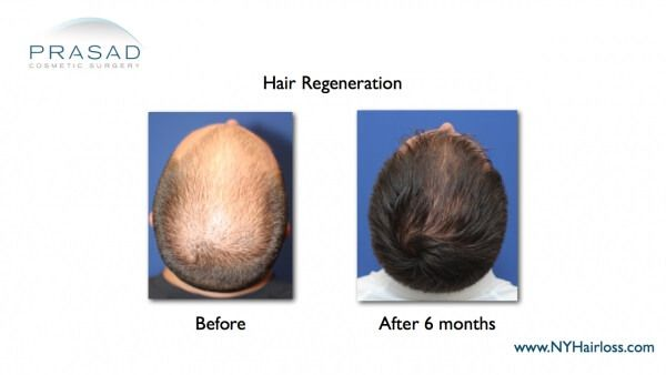 hair regeneration after 6 months
