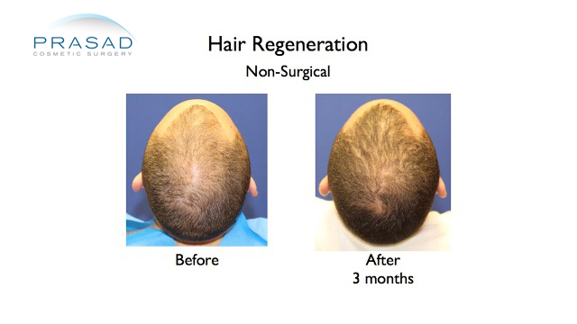 hair regeneration before and after by Dr. Amiya Prasad