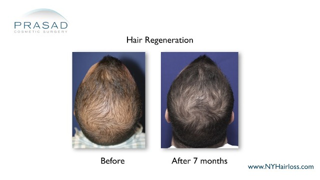 hair regeneration performed by Dr. Amiya Prasad before and after 7 months