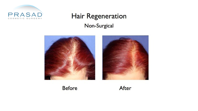 female hairloss before and after hair regeneration