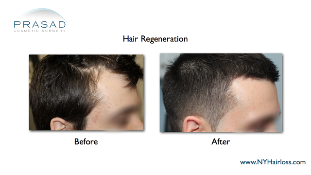 hair regeneration improves right temporal receding hairline