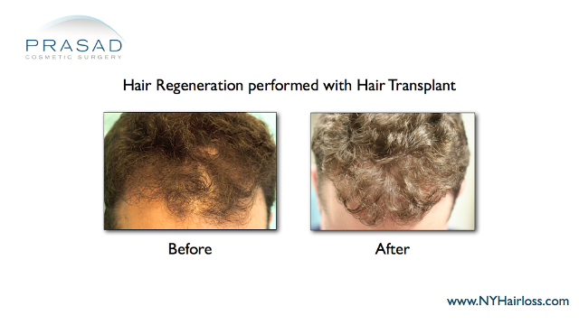 Hair Regeneration Hair Transplant Improvement