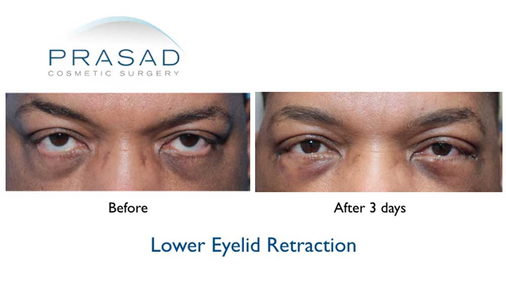 Dr. Prasad uses extracellular matrix to work synergistically with skin and tissue grafts, which are needed in reconstructive surgeries like lower eyelid retraction repair