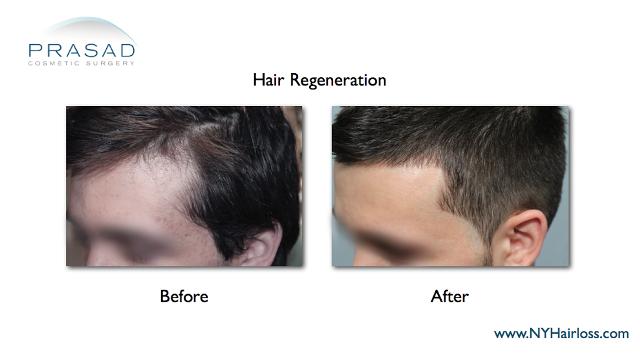 Hair Regeneration improves temporal receding hairline