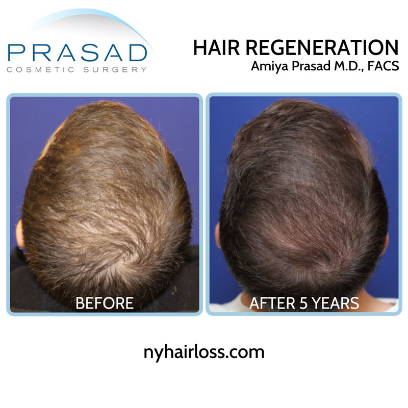 Hair Regeneration ACell PRP male patient with moderate hair thinning 5 years after a single treatment session, without a finasteride
