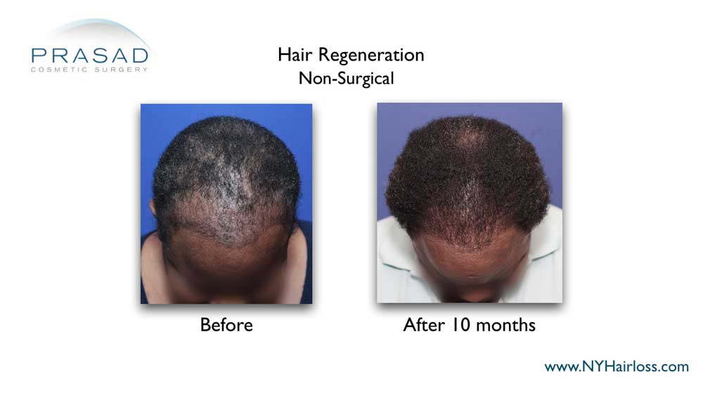 After the Hair Regeneration treatment, patients can stop or gradually stop minoxidil, and women can top using spironolactone