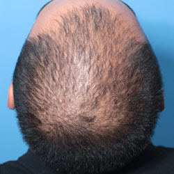 aggressive male pattern hair loss without Finasteride