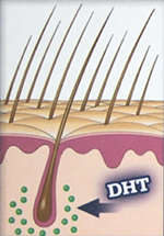 DHT illustration
