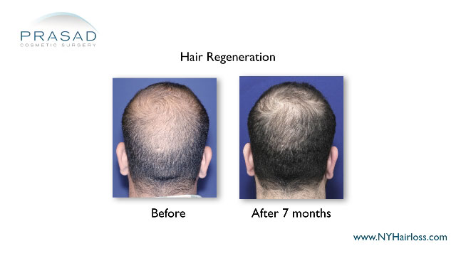 Dr Amiya Prasad performed hair regeneration-for hairloss results are before and after 7 months