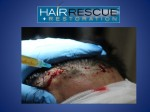 FUE procedure