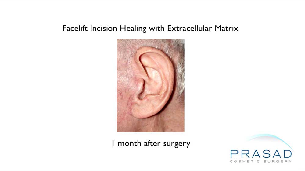 Dr. Amiya Prasad had experience with ACell's extracellular matrix prior to using it for hair loss treatment in 2010, using it for advanced healing of surgical incisions such as facelifts