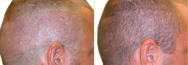 Follicular Unit Extraction Fue Hair Transplant Nyc Ny