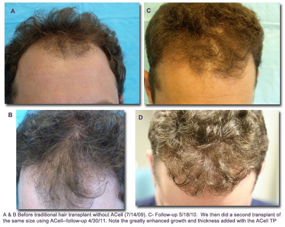 Traditional Transplant vs Acell Hair Transplant
