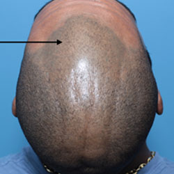hair loss continuing after scalp micropigmentation
