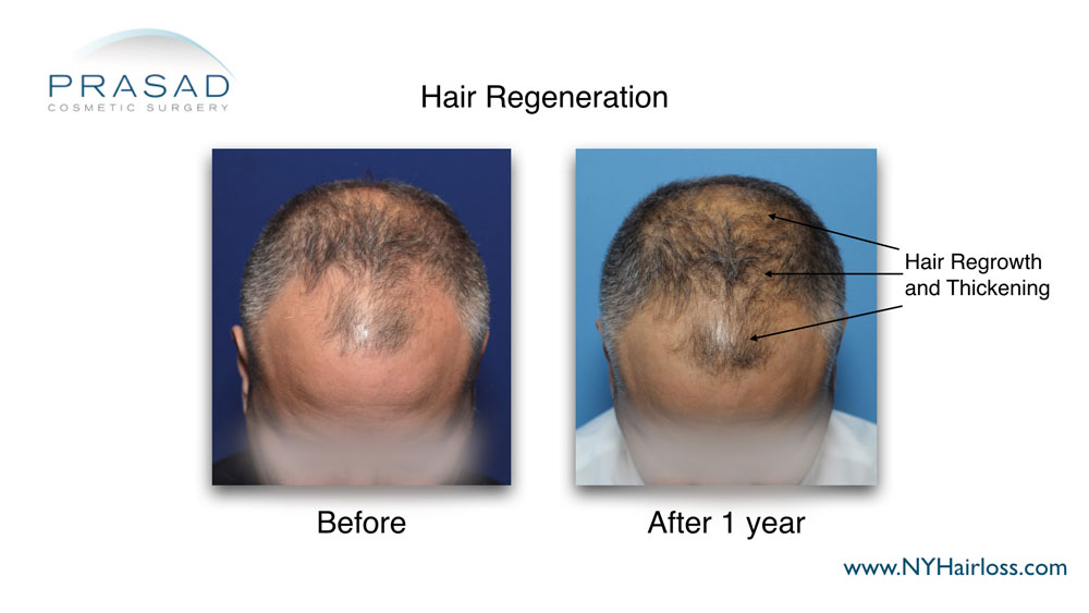 thicker and denser hair growth after hair regeneration treatment