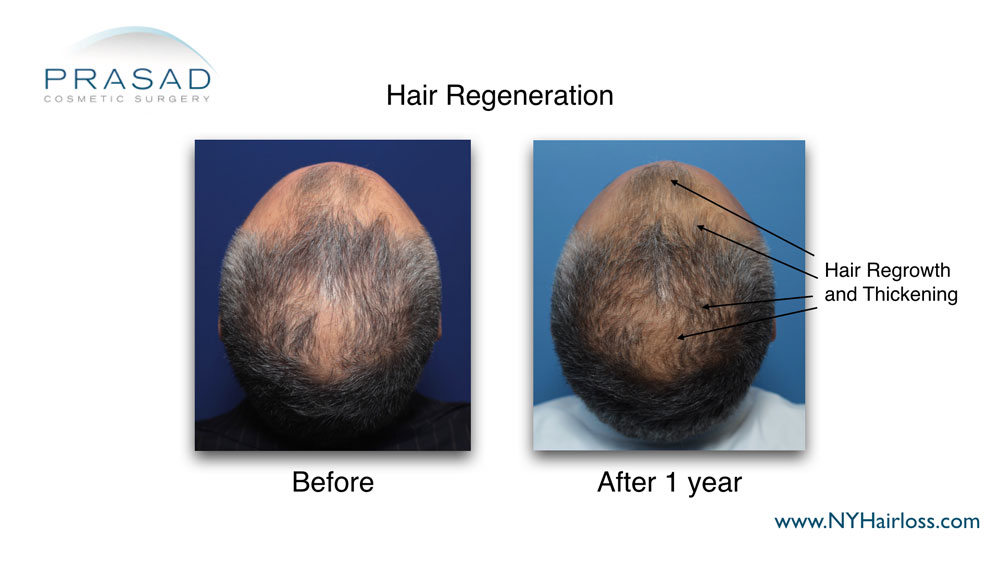 hair growth on hairline, scalp, and crown after hair regeneration