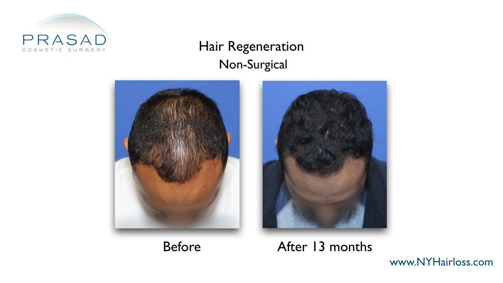Hair Regeneration Before and After 13 months on male patient
