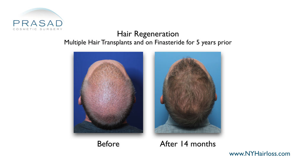 thicker and healthier hair after hair regeneration treatment