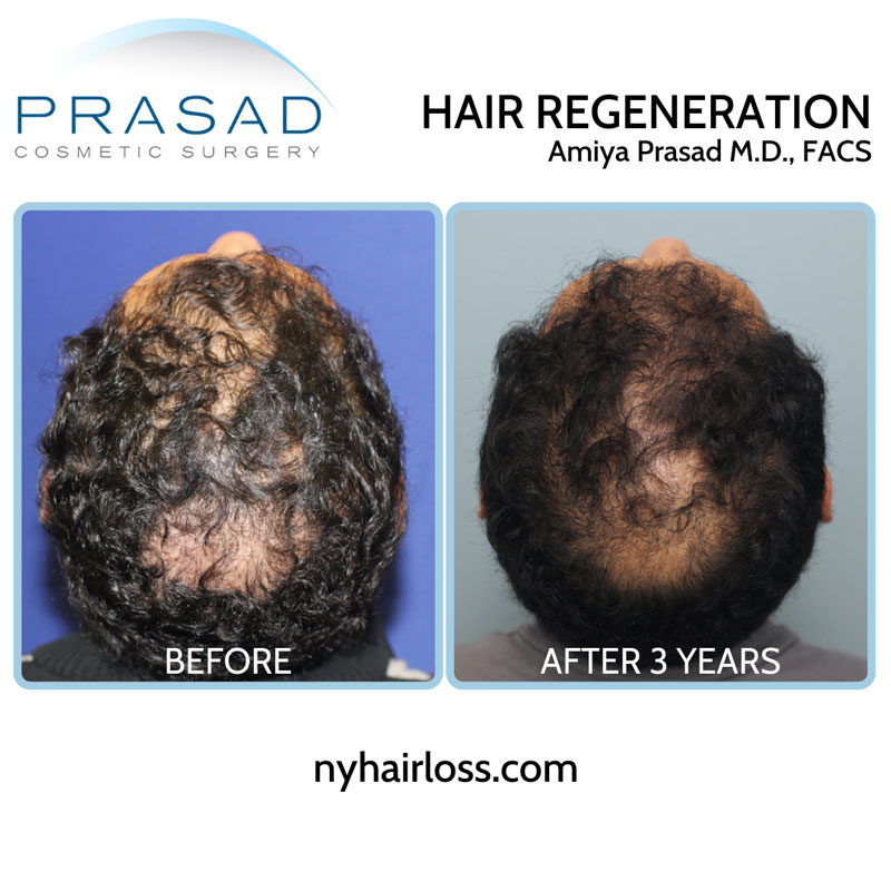 Hair Regeneration PRP ACell is full treatment plan, with the one-time fee covering all follow up appointments