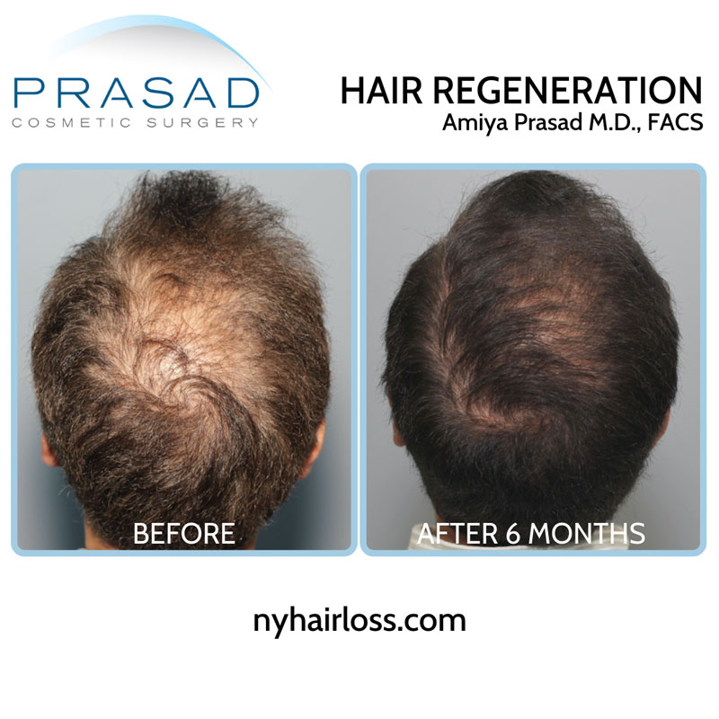 A single Hair Regeneration ACell PRP treatment is effective for most patients, lasting 3-5 years