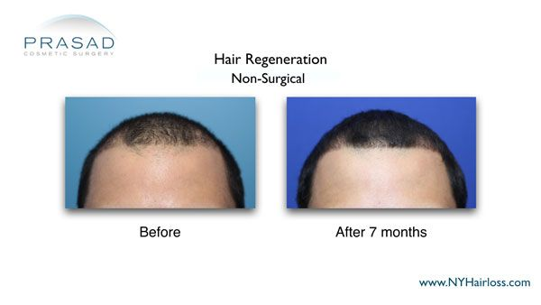 frontal hairline hair regeneration