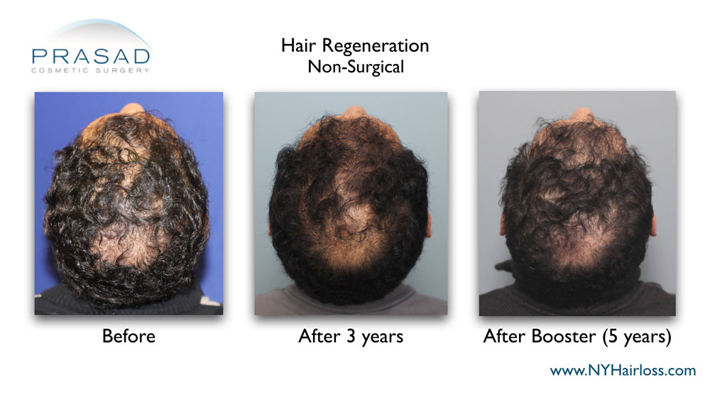 Hair Regeneration PRP ACell is full treatment plan, with the one-time fee covering all follow up appointments, and a second treatment when needed