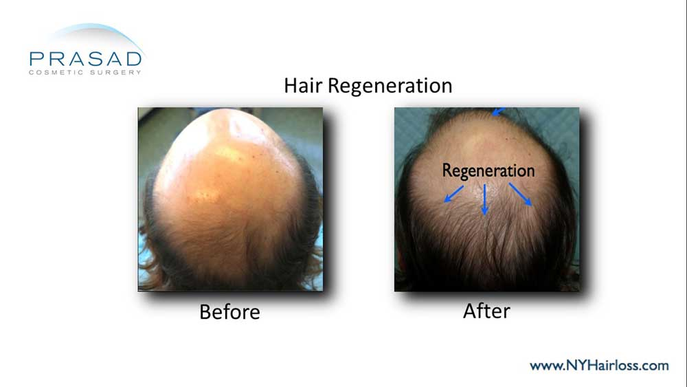 Dr. Prasad's patient where he discovered application of ACell PRP for hair graft healing also thickened thinning hair where grafts weren't placed