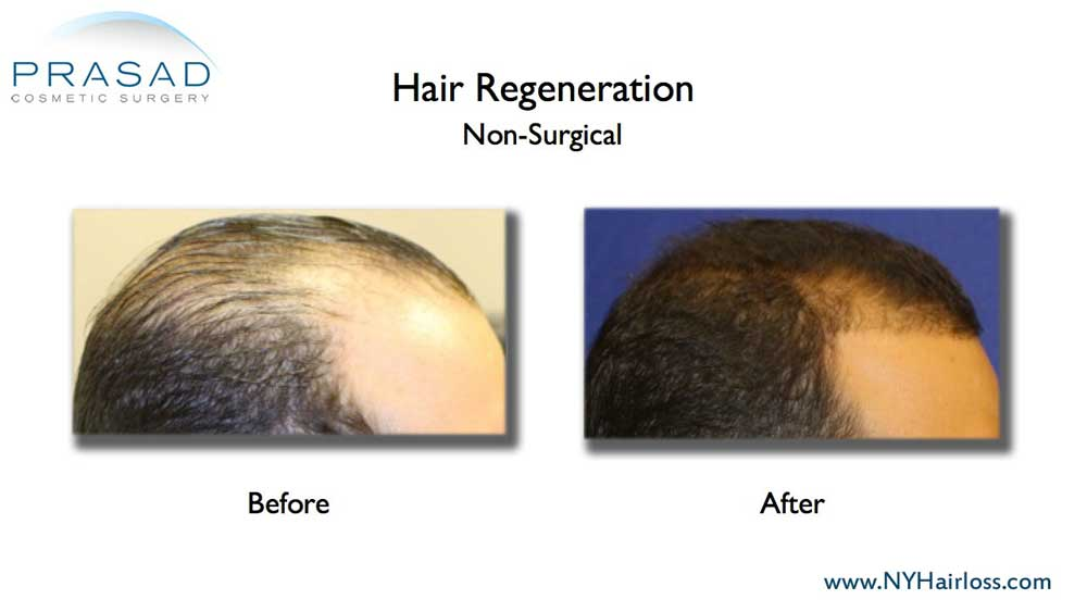 One of the first few patients of Dr. Prasad's Hair Regeneration ACell PRP treatment, showing drastically increased hair coverage from a single treatment session